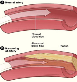 what-is-coronary-angioplasty