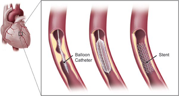 what-is-coronary-angioplasty-01