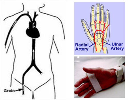 wrist-versus-groin
