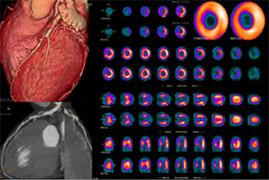 rhubidium-pet-scan
