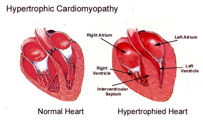 Hypertrophic Cardiomyopathy - Dr. Lim Ing Haan Cardiology Clinic