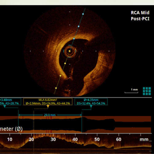 Optical Coherence Tomography (OCT) - Lim Ing Haan Cardiology Clinic